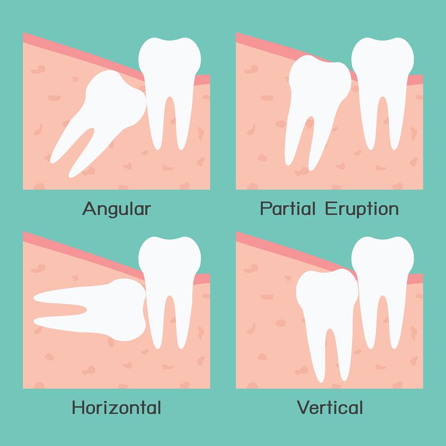 Wisdom Teeth - Essex Junction VT | Essex Family Dentistry
